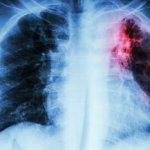 Factores que favorecen el contagio de Tuberculosis