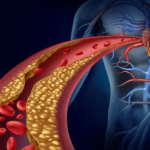 Triglicéridos, por qué suben y alimentos para bajar sus niveles